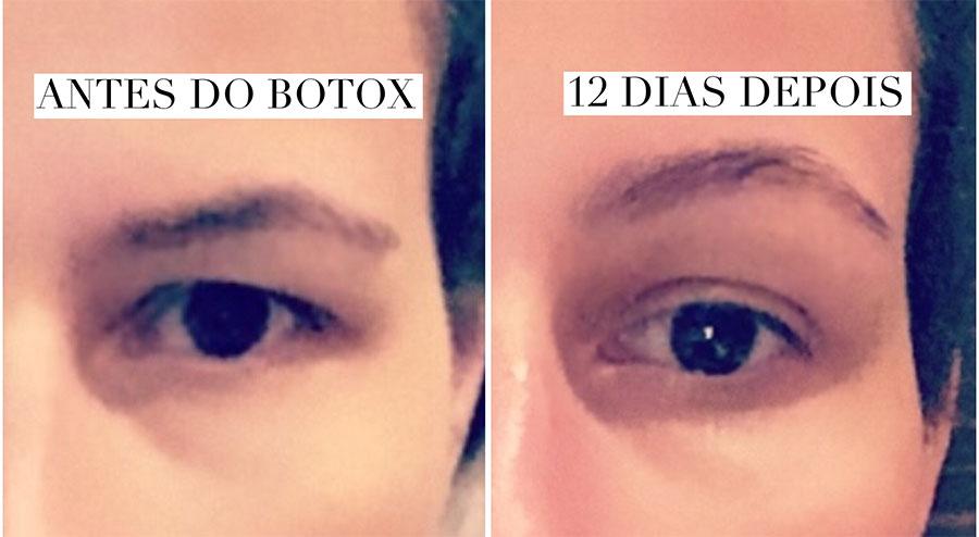 antes e depois botox pálpebras